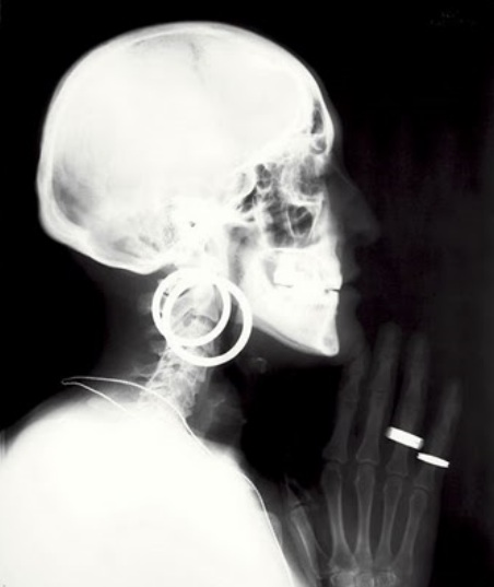 Meret Oppenheim x ray self